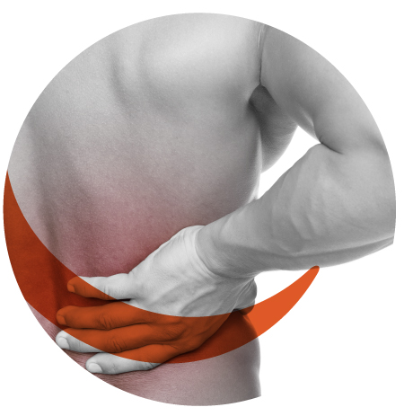 NTG-101 on Back Pain